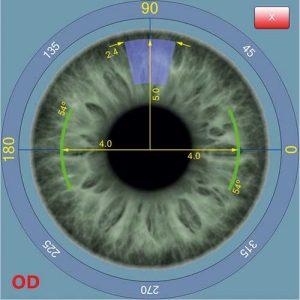 Augenvermessung Augenklinik Roth