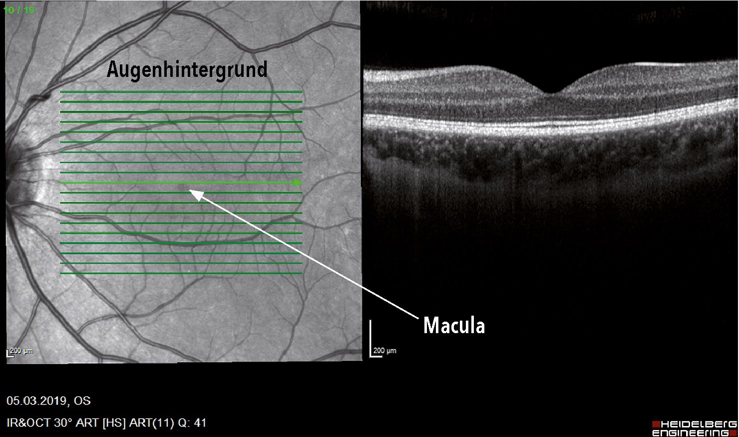 AMD Diagnostik – OCT gesundes Auge